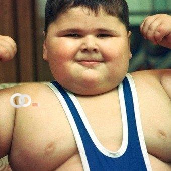Con 21 años murió «el niño más gordo del mundo»