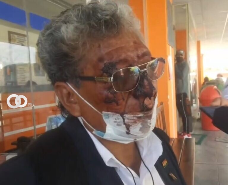 Defensoría repudia actos de agresión hacia José Luis Funes